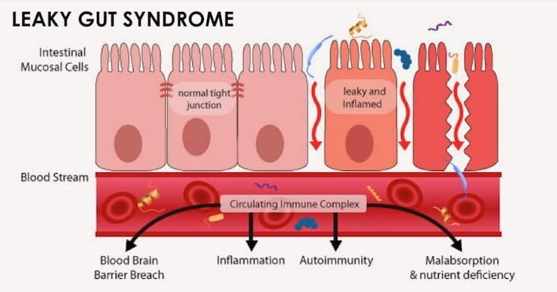 lekkende darm syndroom herstellen